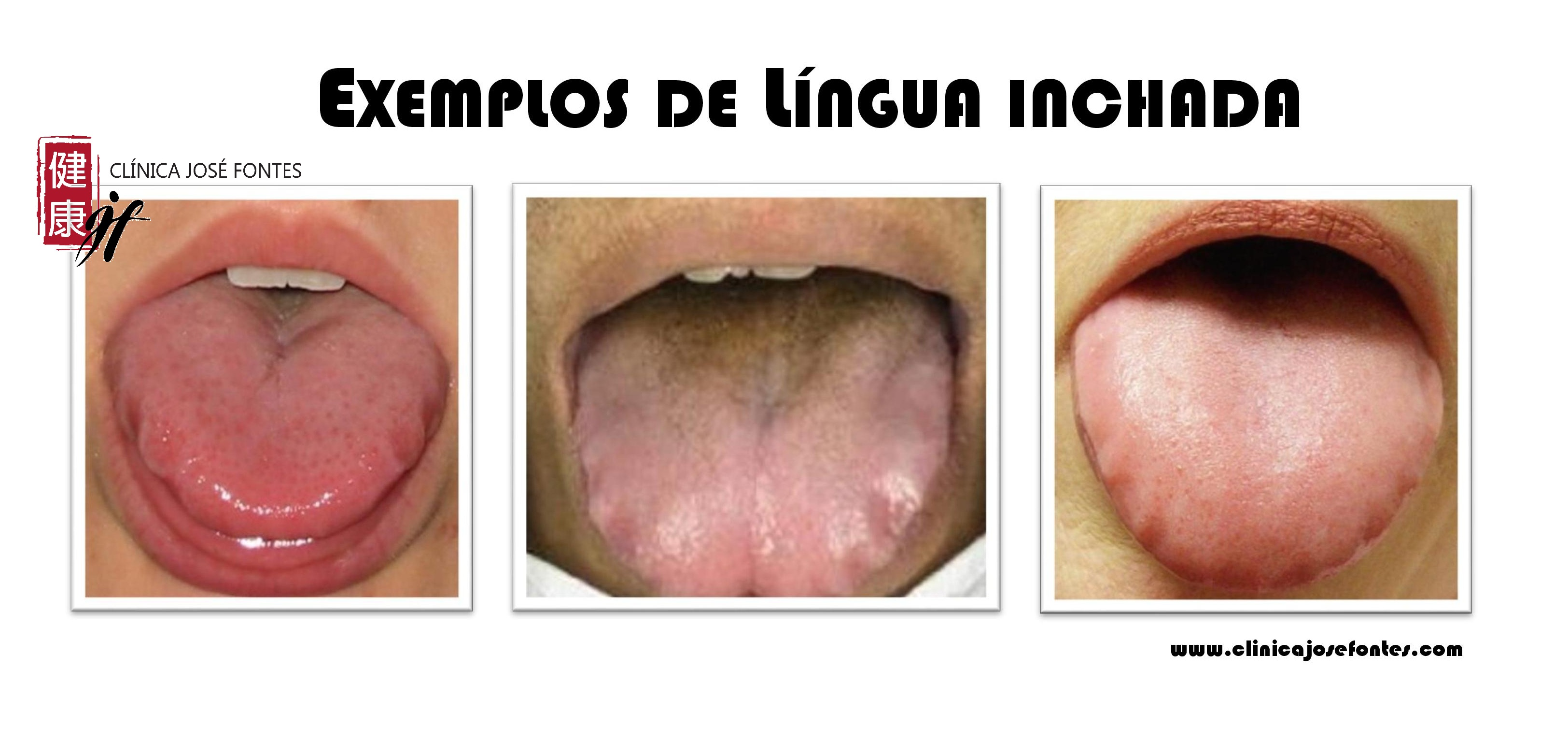 língua inchada