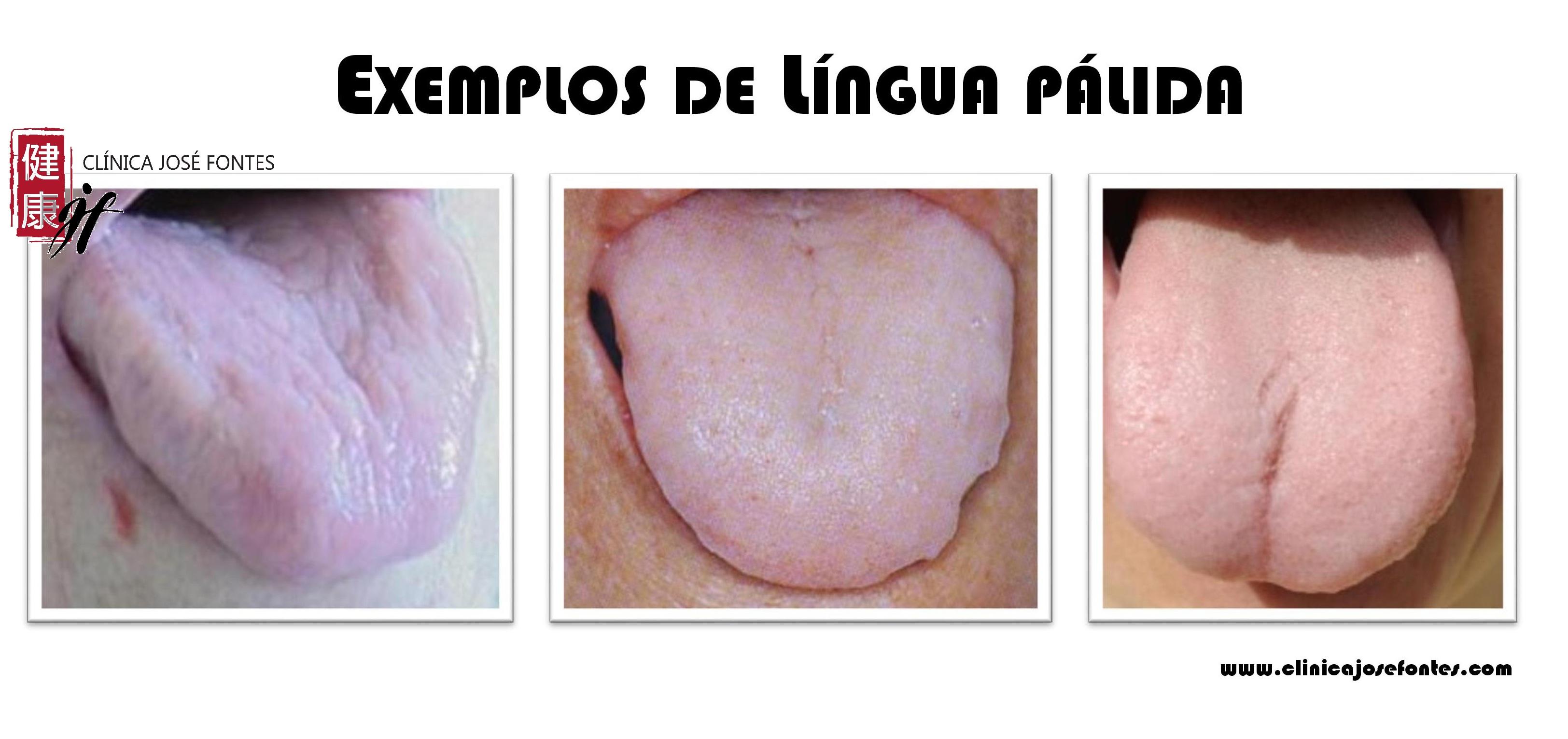 língua pálida