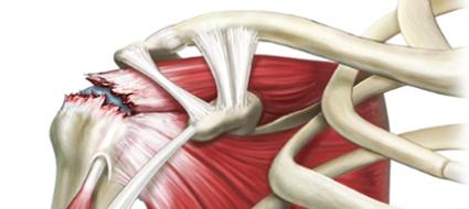 rotura tendinosa do ombro tratamento