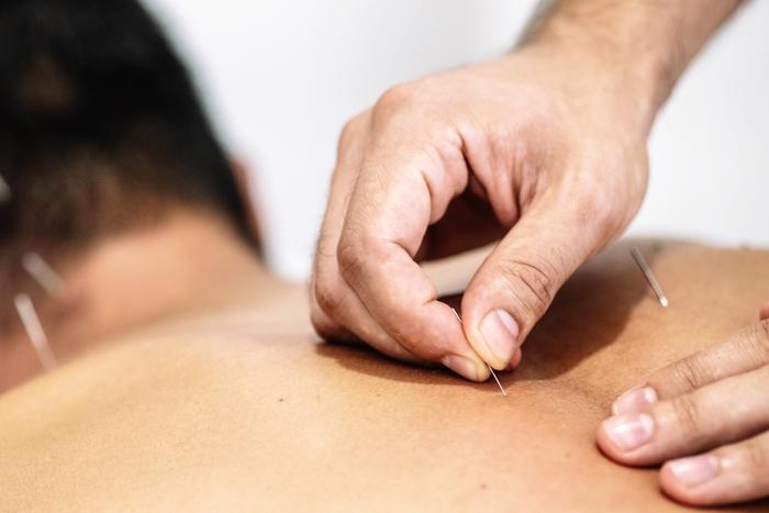 acupuntura medicina chinesa porto