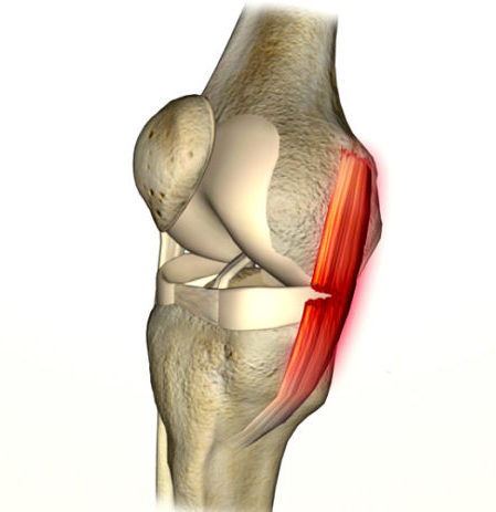 ligamento colateral lateral joelho