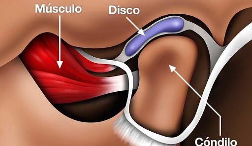 músculo disco condilo atm